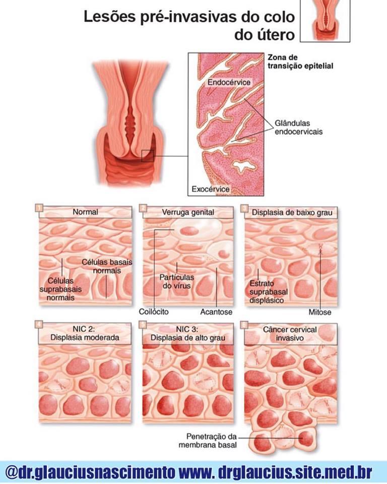 Sindrome pré menstrual e o fator atenuante de pena 2